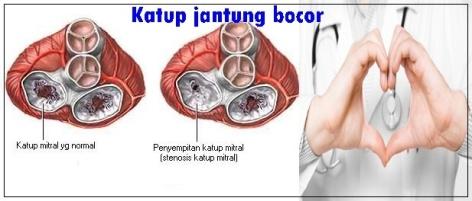 Penyebab Dan Gejala Klep Jantung Bocor Pada Orang Dewasa